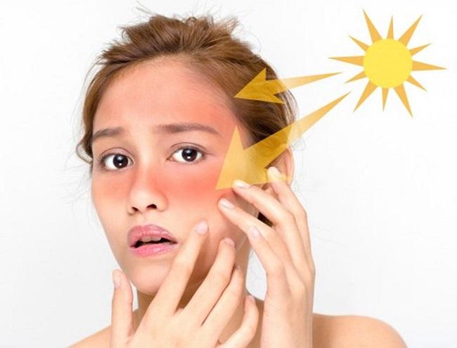 Da sạm đen: Nguyên nhân và cách làm trắng da hiệu quả